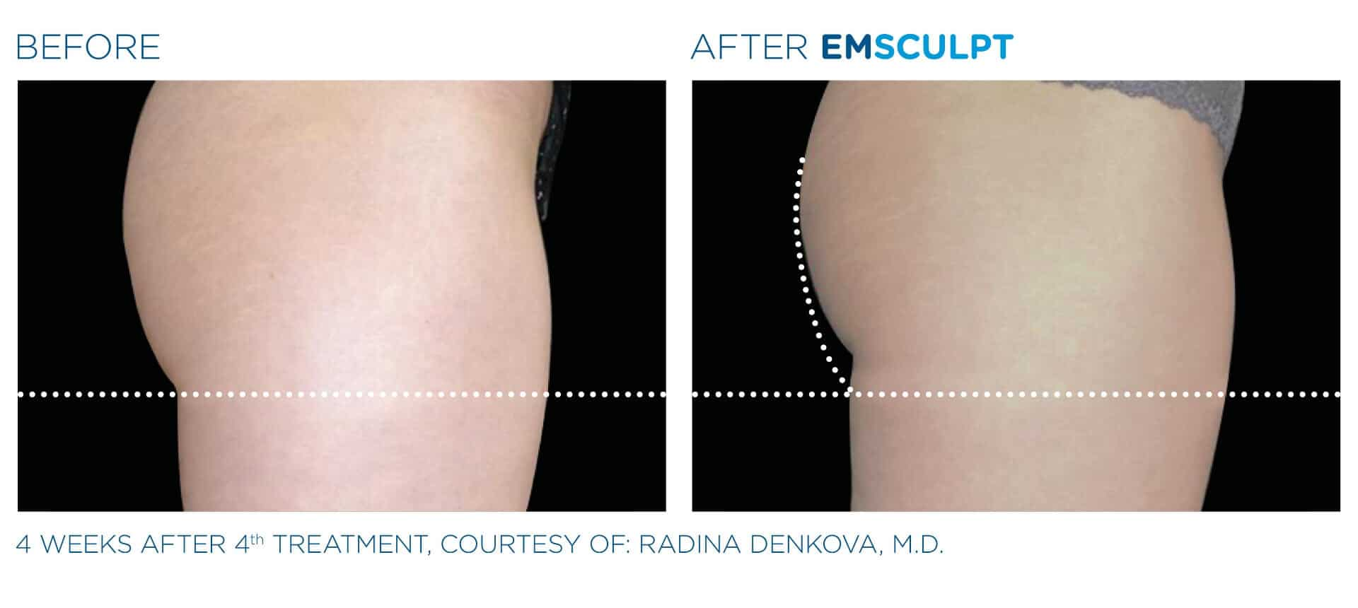 emsculpt_pic_ba-card-female-buttock-015_enus100