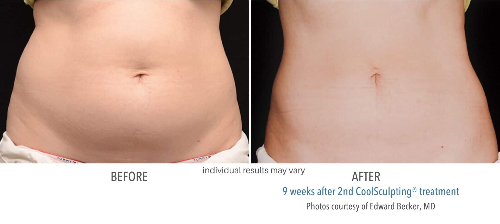 coolsculpting before and after belly fat at Middleboro, MA