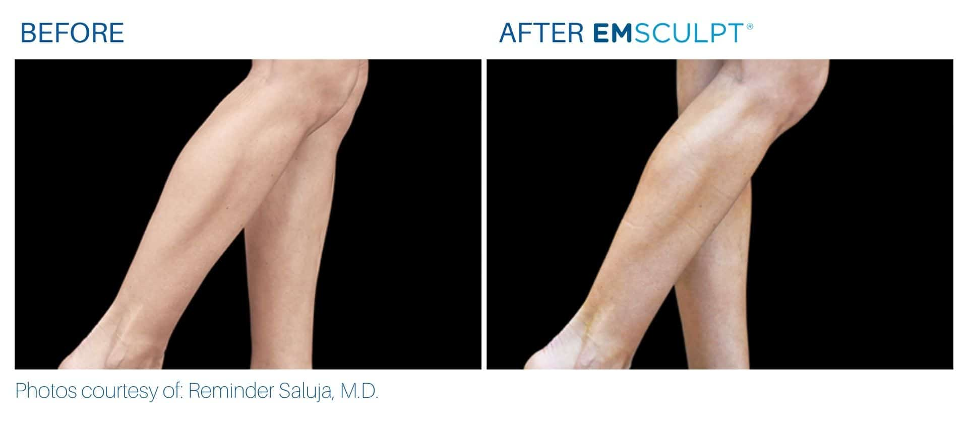 emsculpt calves treatment