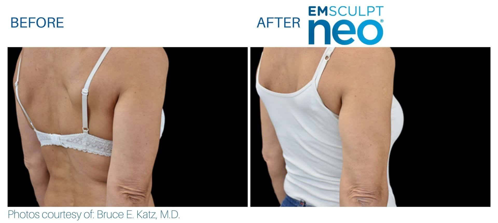 emsculpt neo Triceps women area at Middleboro, MA